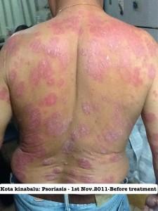 photo-1-kangen-healing-of-psoriasis-225x300