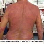 photo-2-kangen-water-psoriasis-225x300